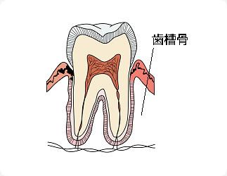 『あごの骨』が溶ける病気です
