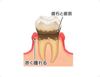 <歯周炎>