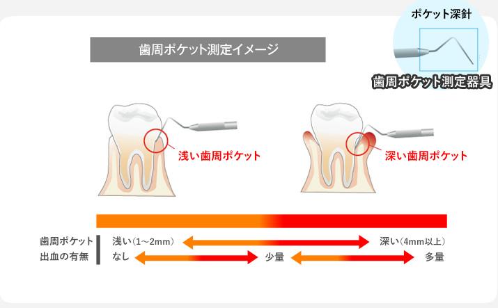 歯周ポケット測定イメージ