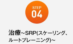 治療~SRP(スケーリング、ルートプレーニング)~