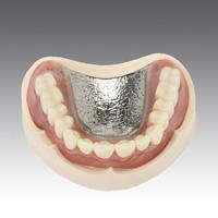 自由診療義歯