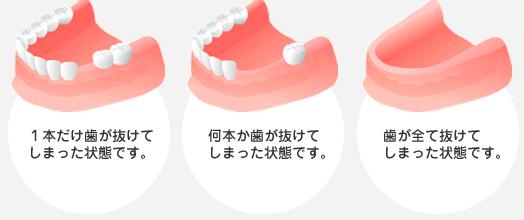 歯が失われてしまった状況とは?