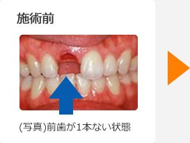 (写真)前歯が1本ない状態