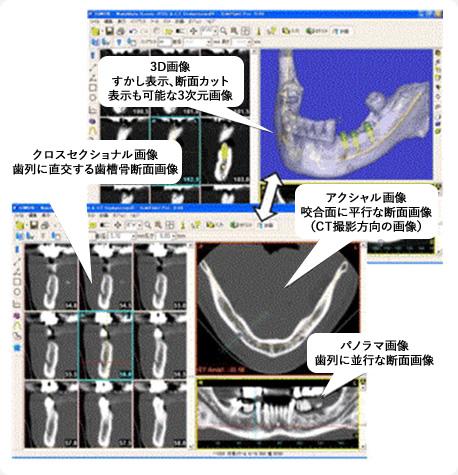 CT検査の必要性について