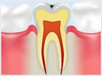 C0 ごく初期の虫歯