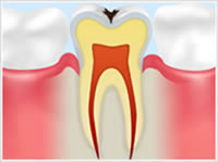 C1 エナメル質の虫歯