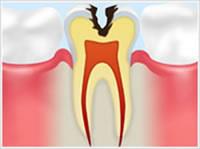C2 象牙質の虫歯