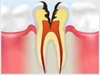 C3 象牙質の虫歯