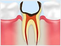 C4 歯根まで達した虫歯