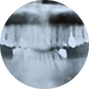 治療前のお口の中の全体の状態を専用のデジタルカメラにて撮影