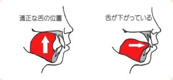 舌の位置が下がります